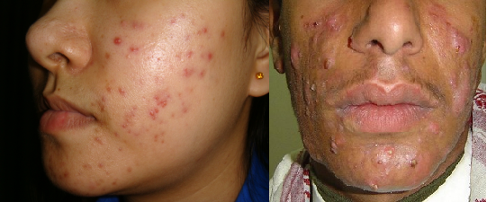 Acne Vulgaris Pictures