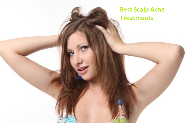 "Scalp Acne on the head ""Best Scalp Acne Treatments"" for itchy scalp"