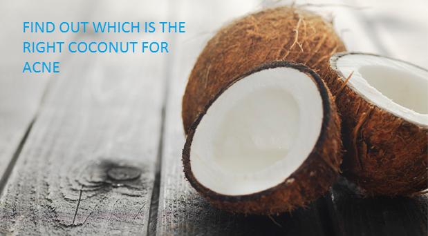 Coconut oil best treatment for acne vulgaris