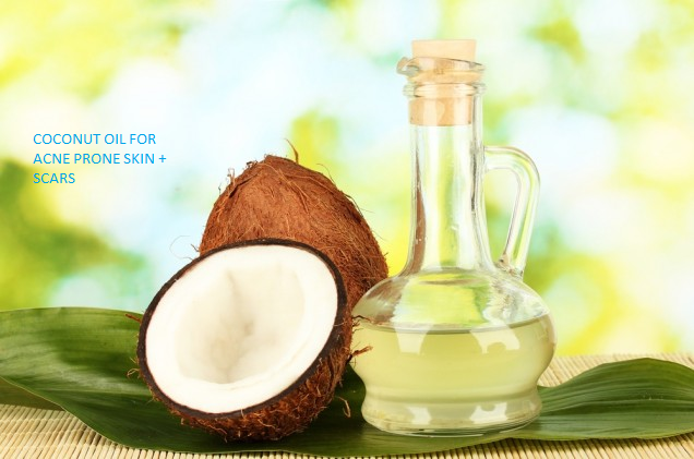 Coconut oil for scars and acne prone skin