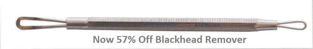 Stop Blackheads Returning