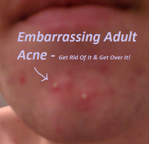 Adult acne pimples on chin